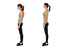 Woman with impaired posture position defect. Scoliosis and ideal bearing royalty free stock images