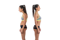 Woman with impaired posture position defect scoliosis and ideal bearing.  royalty free stock photos