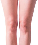 Woman knees isolated on white Royalty Free Stock Photos