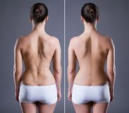 Woman with large scar on the back, before after concept. Rear view on gray background royalty free stock photos