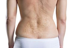 Woman with a large scar after burn on the back, isolated on white background. Woman with a large scar after burn on the back, rear view, isolated on white stock images