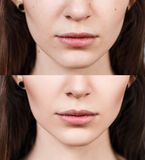 Woman before and after lip filler injections. Young woman before and after lip filler injections. Lip augmentation concept royalty free stock photography