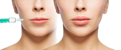 Woman before and after lip fillers injection. People, cosmetology, plastic surgery and beauty concept - beautiful young woman face woman before and after lips stock image