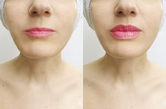 Free Woman Lips Before And After Perfect Enhancement Correction Augmentation Difference Injection Royalty Free Stock Photo - 151634505