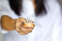 Woman losing hair on hairbrush in hand Royalty Free Stock Photo