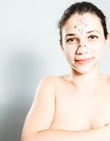 Woman marked for plastic surgery Stock Photos