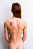 Woman with marks from sliding cupping therapy. Rear view of young woman showing marks from sliding cupping therapy on her back Royalty Free Stock Image
