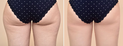 Woman before and after medical treatment Royalty Free Stock Images
