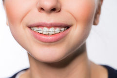 Woman mouth with teeth braces Royalty Free Stock Photos