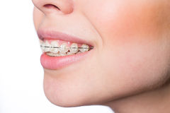 Woman mouth with teeth braces Royalty Free Stock Images