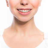 Woman mouth with teeth braces Stock Photos