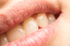 Woman Natural Lips And Teeth Macro Royalty Free Stock Photos