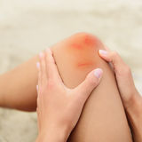 Woman nursing a bruised grazed knee Royalty Free Stock Image