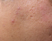 Woman with oily skin and acne scars Royalty Free Stock Images