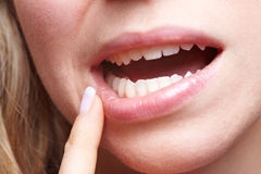 Woman with pain in her gums. Holding finger to mouth stock images