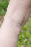 Woman with painful varicose and spider veins on her legs Stock Image