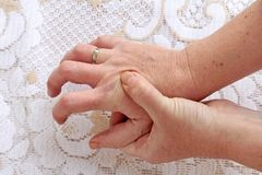 A woman with Parkinson`s disease has her hands shaking. Strongly trembling hands in seniors. A woman with Parkinson`s disease has her hands shaking Stock Image