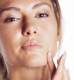 Woman with pimple making out close up isolated on Royalty Free Stock Photos
