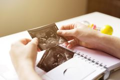 Woman placing baby`s sonogram into baby`s first year memory book Stock Images