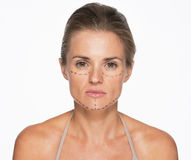 Woman with plastic surgery marks on face Stock Photos