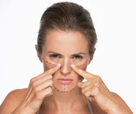 Woman with plastic surgery marks on face pointing on nose Royalty Free Stock Photos