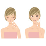 Woman pointing her pimples Stock Photography