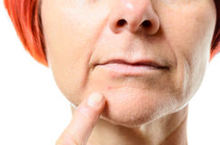 Woman pointing to blemish on chin Stock Photo