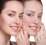 Woman with problem skin on her face. Before and after treatment, over white background Royalty Free Stock Photo