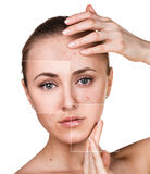 Woman with problem skin on her face Royalty Free Stock Photo