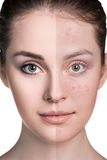 Woman with problem skin on her face Stock Photos
