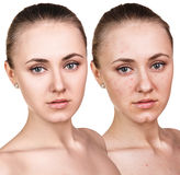 Woman with problem skin on her face Stock Photography
