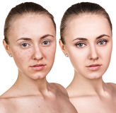 Woman with problem skin on her face. Before and after treatment over white background Stock Photo