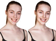 Woman with problem skin Royalty Free Stock Images