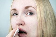 A woman puts on the lips ointment from herpes stock photography