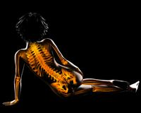 Woman radiography scan Royalty Free Stock Photo