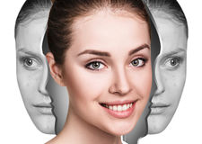 Woman rebirth from bad acne skin to perfect. Royalty Free Stock Image