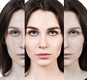 Woman rebirth from bad acne skin to perfect. Young woman rebirth from bad acne skin to perfect. Before and after treatment and makeup Stock Photos