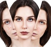Woman rebirth from bad acne skin to perfect. Young woman rebirth from bad acne skin to perfect. Before and after treatment and makeup Royalty Free Stock Image