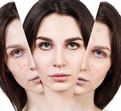 Woman rebirth from bad acne skin to perfect. Young woman rebirth from bad acne skin to perfect. Before and after treatment and makeup Royalty Free Stock Photo