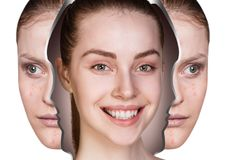 Woman rebirth from bad acne skin to perfect. Young woman rebirth from bad acne skin to perfect. Before and after treatment Stock Photos