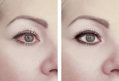Woman red eye before after threat vision problem procedures ophthalmology. Woman red eye before and after procedures, problem conjunctivitis threat royalty free stock photos