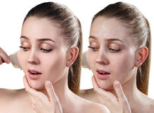 Woman remove her old dry skin from face. Beautiful woman remove her old dry skin from face. Before and after retouch. Isolated on white Royalty Free Stock Photos