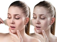 Woman remove her old dry skin from face. Beautiful woman remove her old dry skin from face. Before and after treatment,. Isolated on white Stock Photo