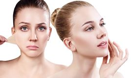 Woman remove her old dry skin from face. Collage of beautiful woman remove her old dry skin from face. Over white background Stock Photo