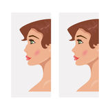 Woman before and after rhinoplasty. Vector illustration Royalty Free Stock Photography