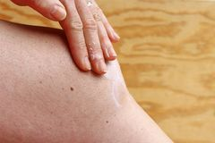 A woman rubs a pain on her knee. Painful arthrosis of the knee stock photography