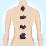 Woman's back having spa stone treatment. Vector illustration Stock Photography