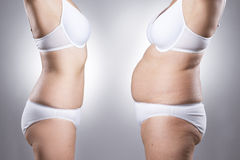 Woman's body before and after weight loss. On a gray background royalty free stock photography