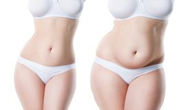 Woman`s body before and after weight loss isolated on white background stock image