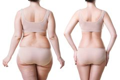 Woman`s body before and after weight loss isolated on white background stock images